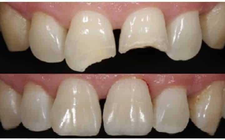Методи нарощування зубів